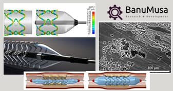 Numerical modeling of biodegradable stent corrosion